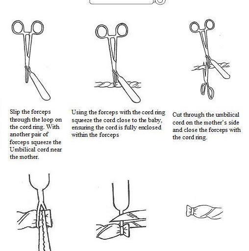 hoe gebruik je een cord ring