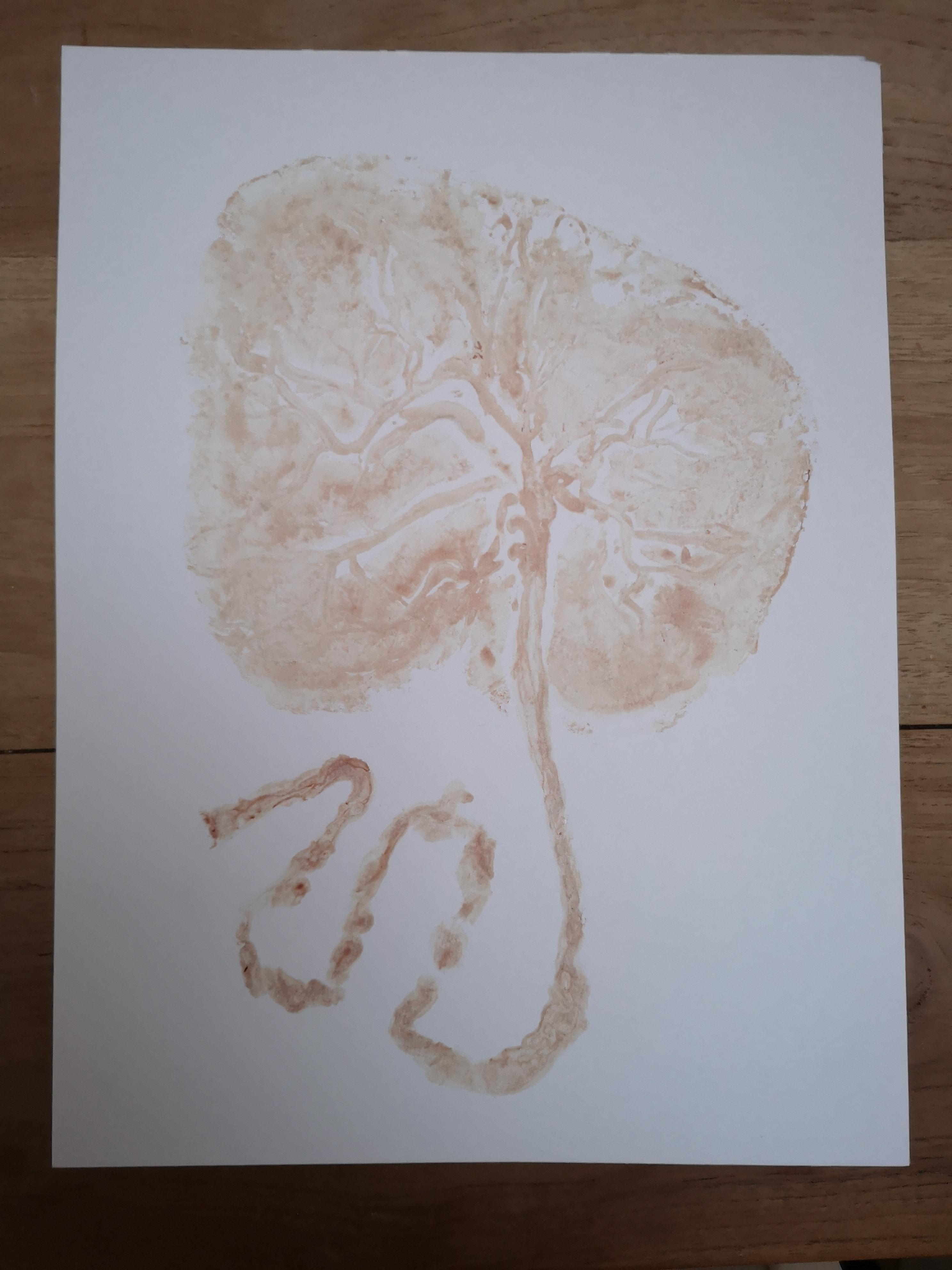 placenta navelstreng gezond